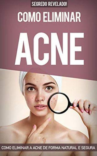Acne: Como Eliminar a Acne de forma natural e segura sem precisar